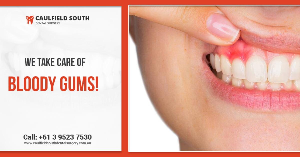 Bleeding gums – is it normal?