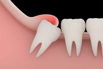Do Wisdom Teeth Always Need To Be Removed