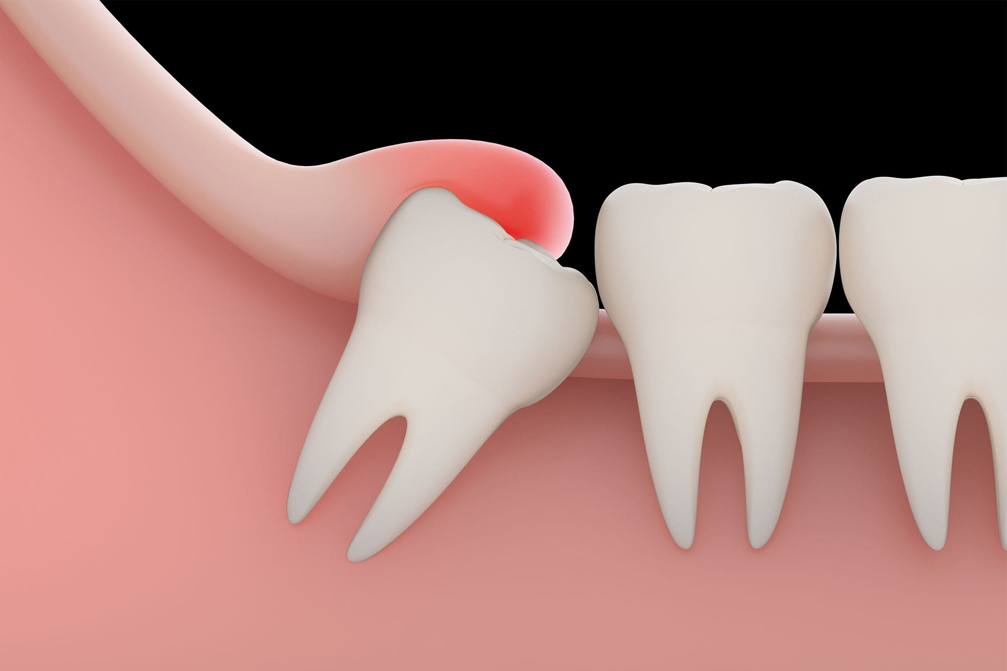 Do Wisdom Teeth Always Need To Be Removed?